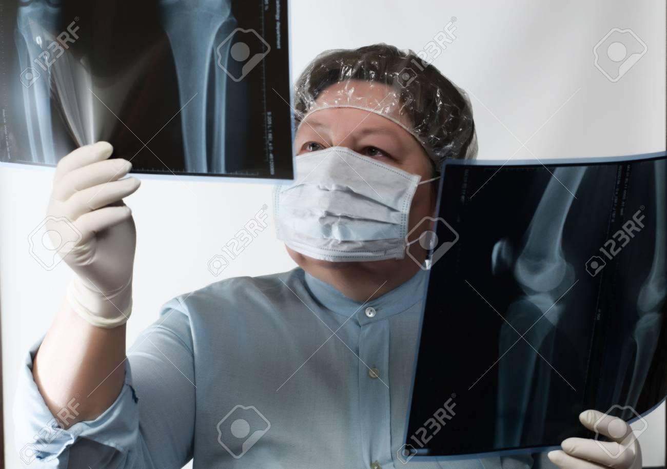 Mila shegol anal prolapse
