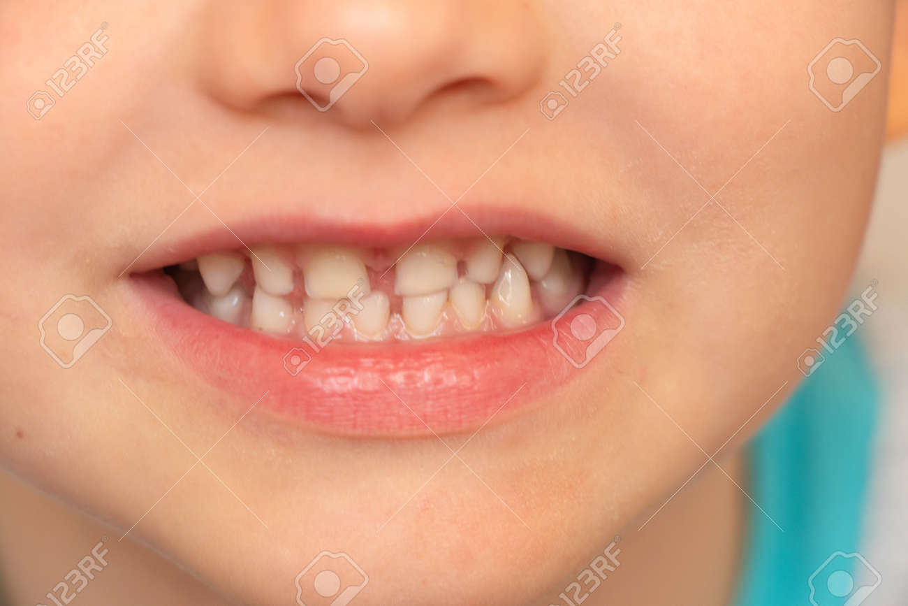 baby white teeth close-up, smiling little boy - 148063670