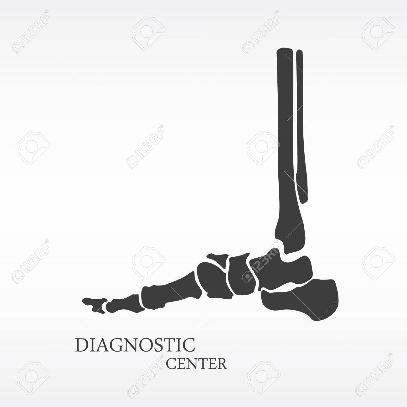 Vector Illustration Foot Bone Anatomy Side View. Orthopedic Flat ...