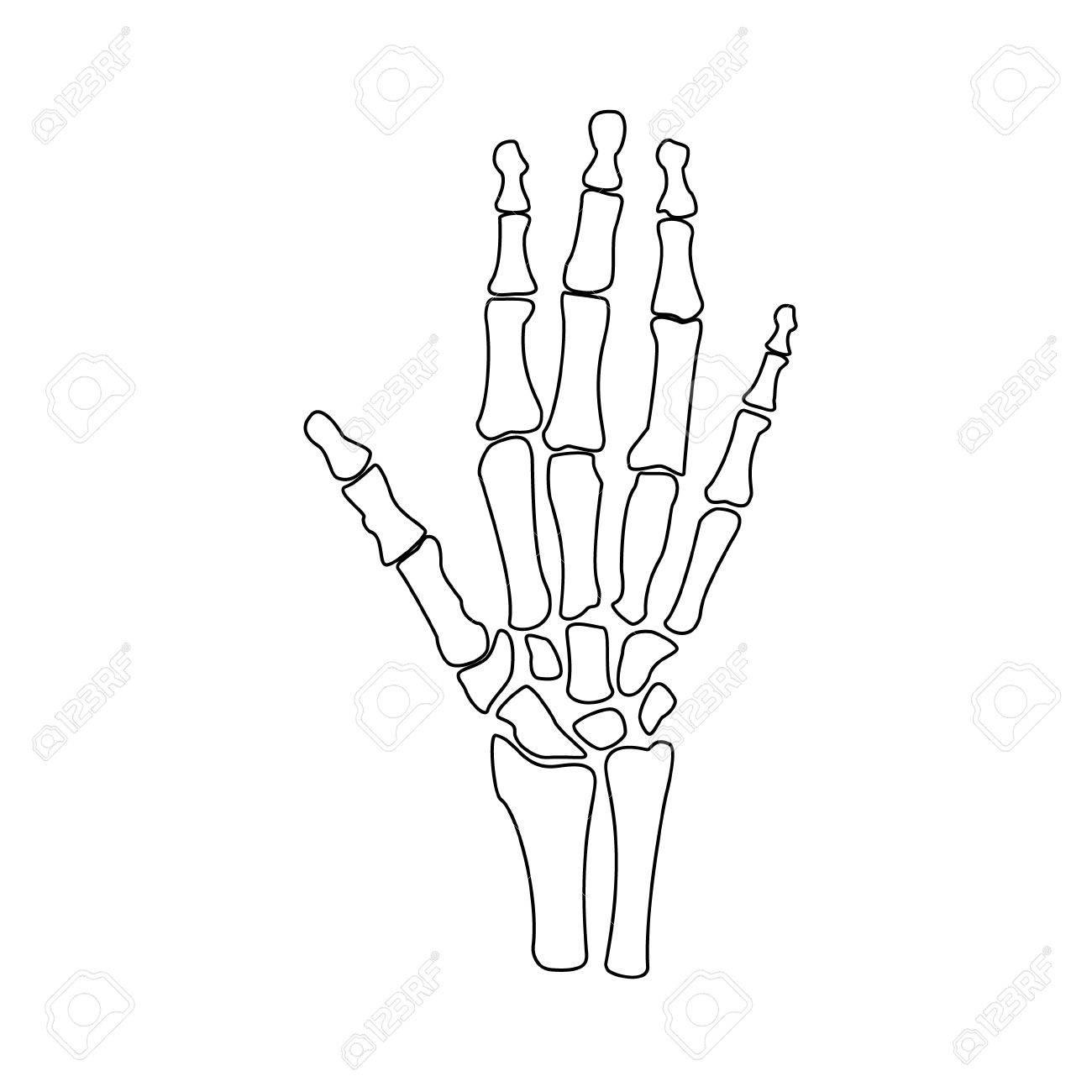 Raster Illustration Hand Knochen Umriss Zeichnung. Orthopädische ...