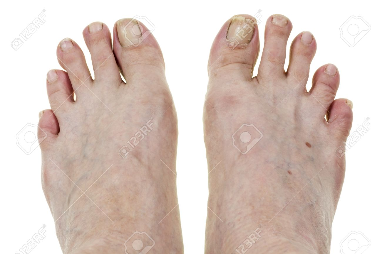 Legs Feet Elderly No Name Mass Production Man With Crooked Fingers ...