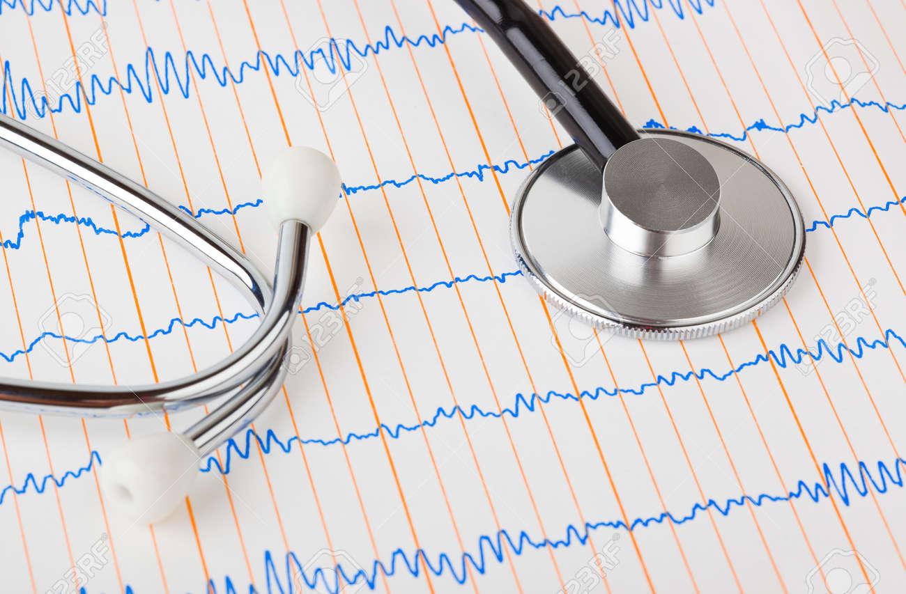 Stethoscope on ecg - medical background Stock Photo - 11594202