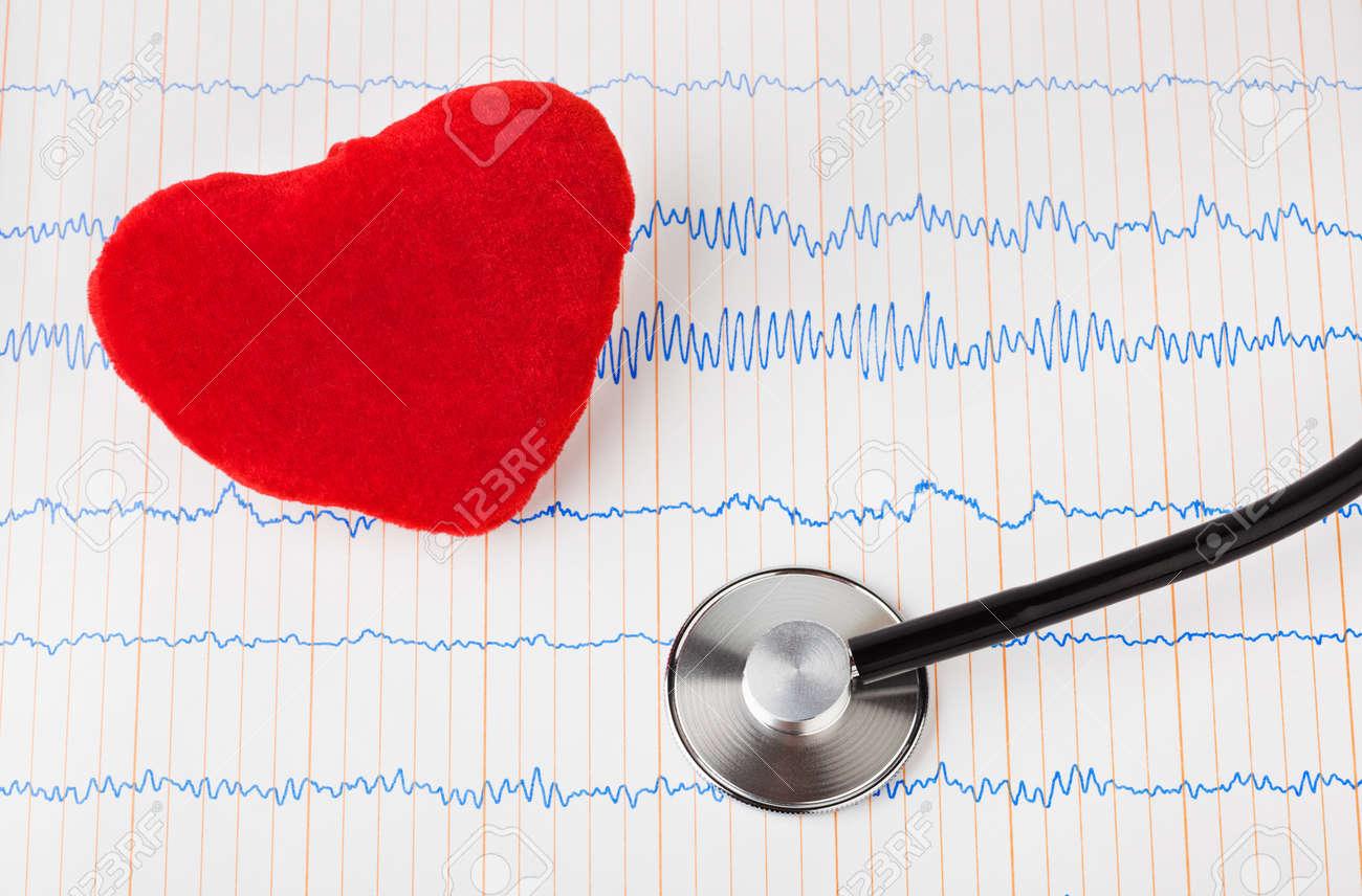 Heart and stethoscope on ecg - medical background Stock Photo - 12322368