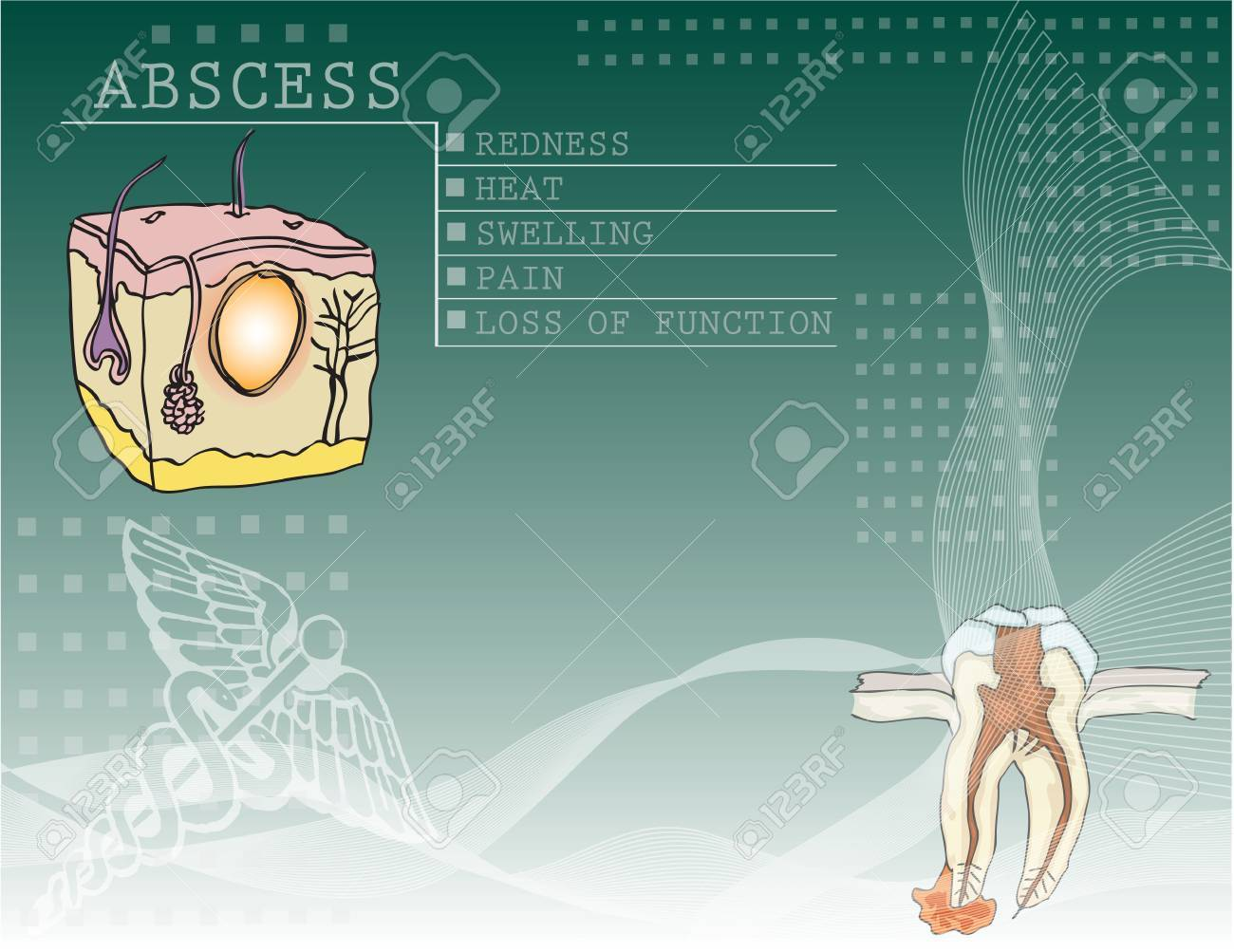 The background to the disease abscess with illustrations and medical symbols. Stock Vector - 10882162