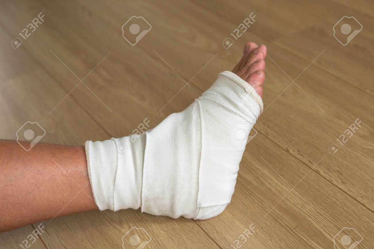 Injured male leg  Fracture or dislocation of the ankle joint