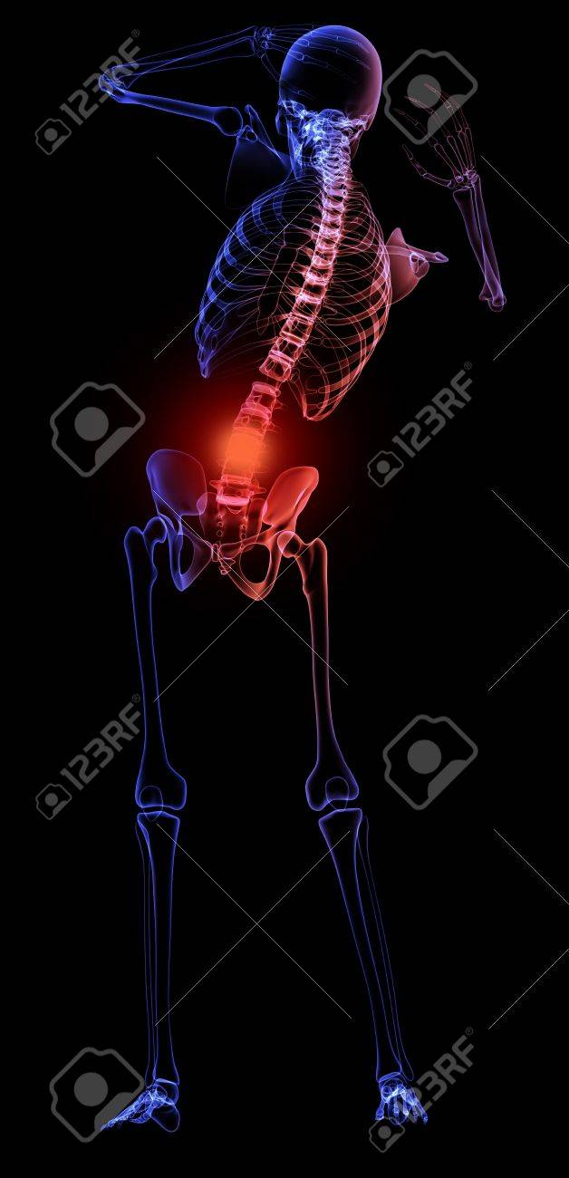Human Skeleton With A Visible Pain In The Lower Back Stock Photo