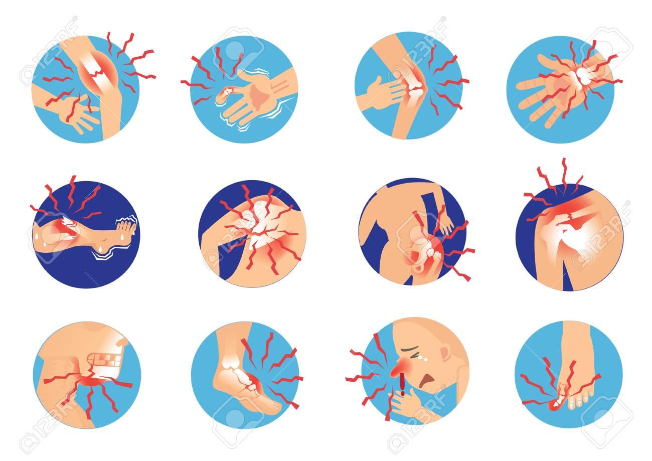 Oblique fracture of human bones Severe pain Anatomy. cartoon vector illustration - 91375854