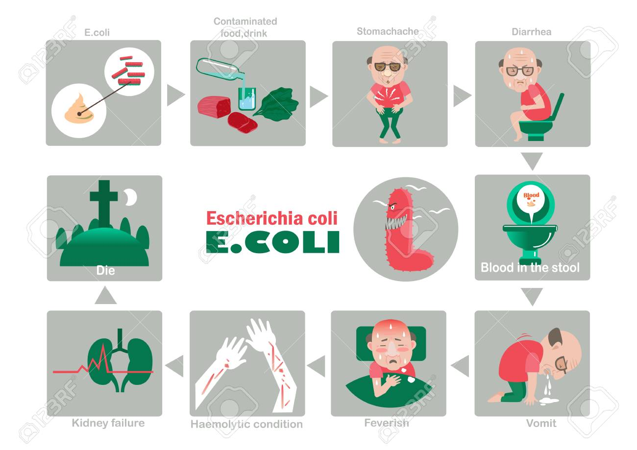 Symptom Of Patients Escherichia Coli Illustration Royalty Free Cliparts Vectors And Stock Illustration Image 91385562