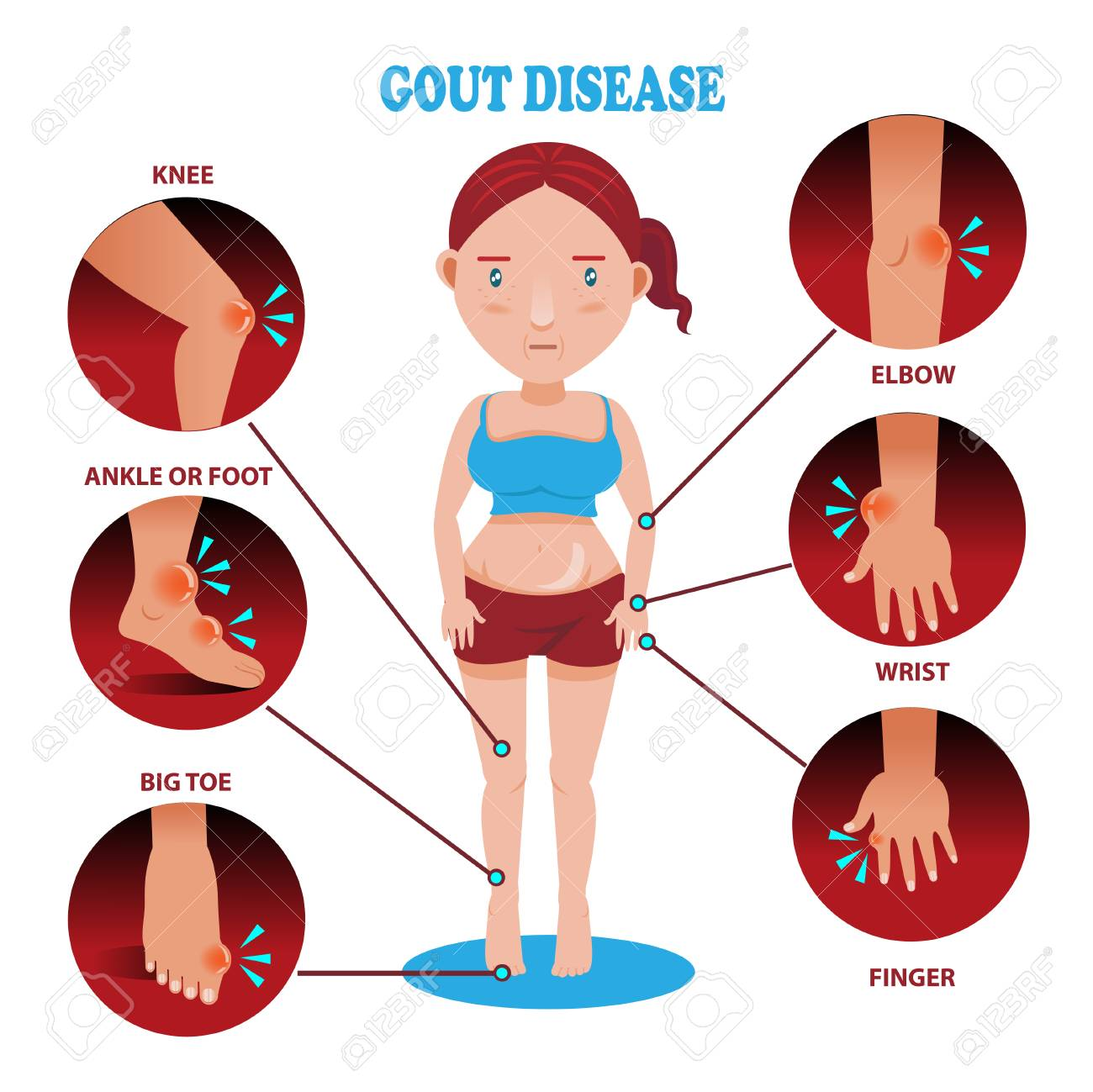 Painful and inflamed gout on her body around the Bones and joints in the circle. - 91431527