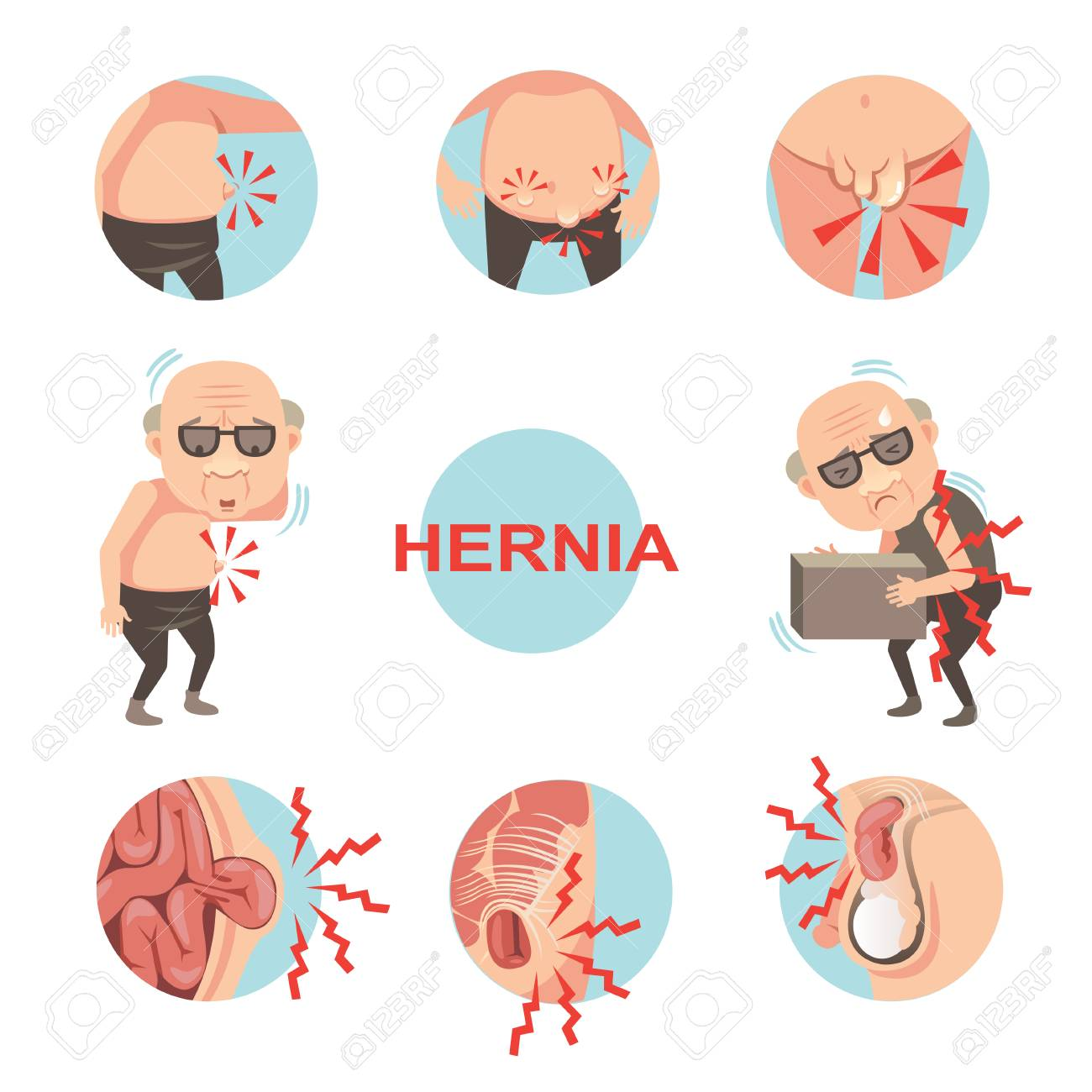 Diagram Of Inside Umbilical And Inguinal Hernia Men With Hernia