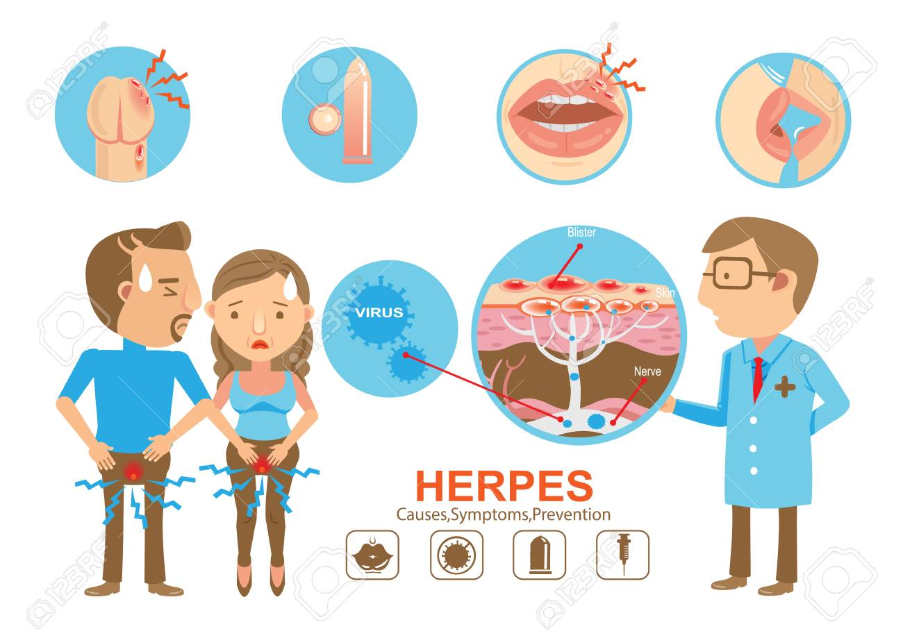 Doctor holding diagram, herpes on the lips and of the young woman and young men. - 91954933