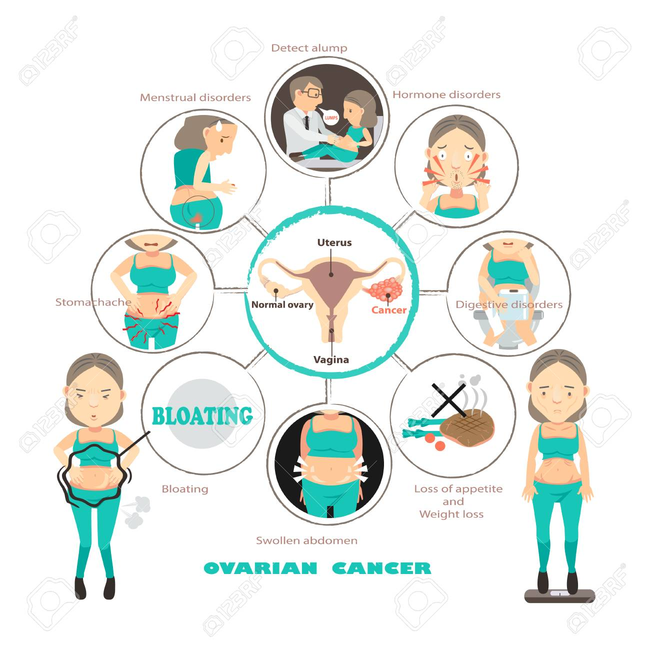 Symptoms of ovarian cancer in circles,info graphic vector illustration - 92939396