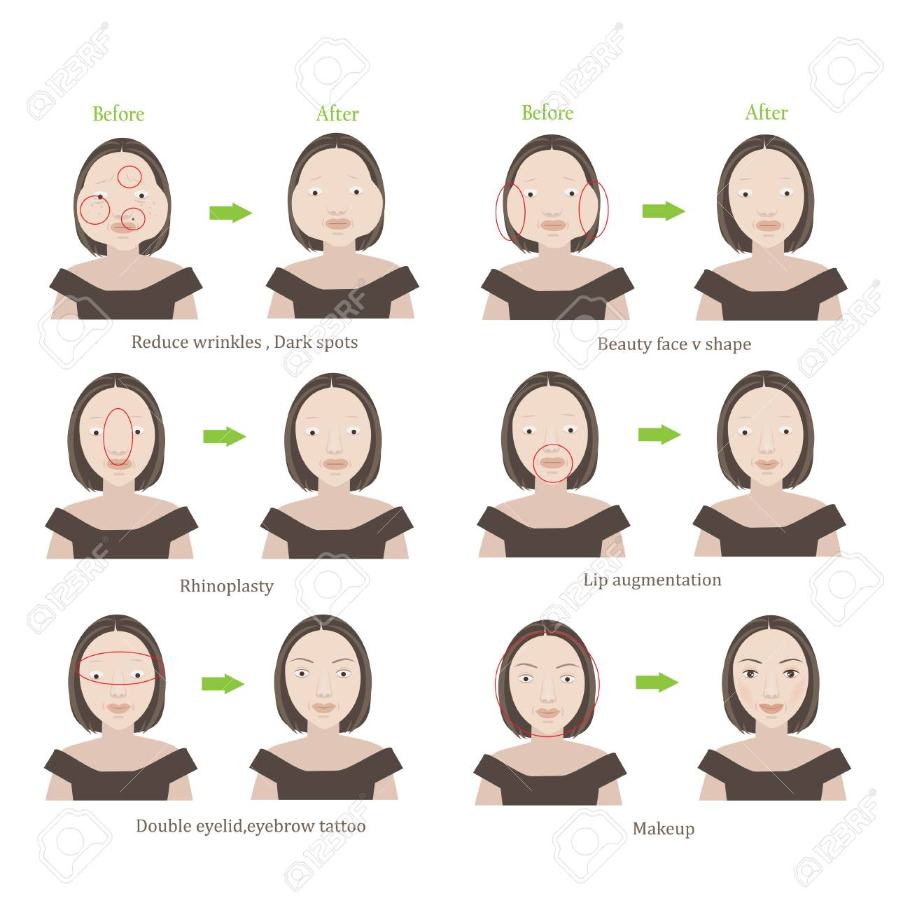 Plastic surgery women before and after cosmetic surgery  Cartoon