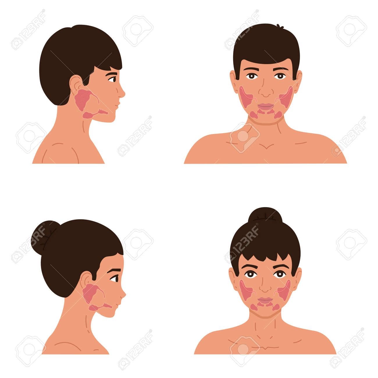The location of the parotid, submandibular and sublingual salivary glands in the male and female body. Flat vector illustration of healthy salivary glands - 166793577