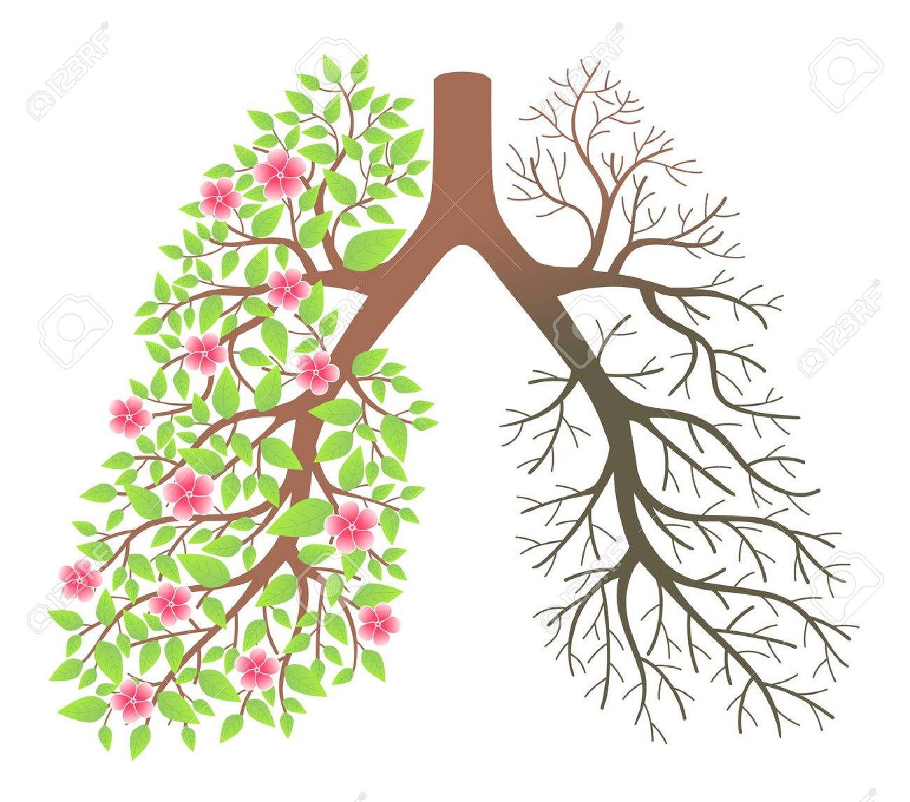 Lungs  Effect after smoking and disease Stock Vector - 18826428