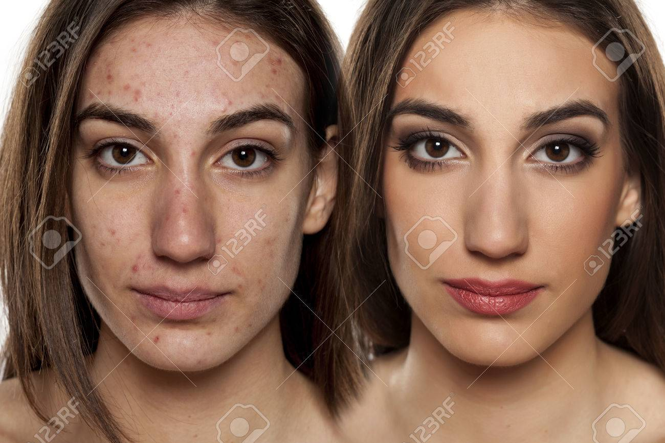 Comparison portrait of a woman with problematic skin without and with makeup - 65602559