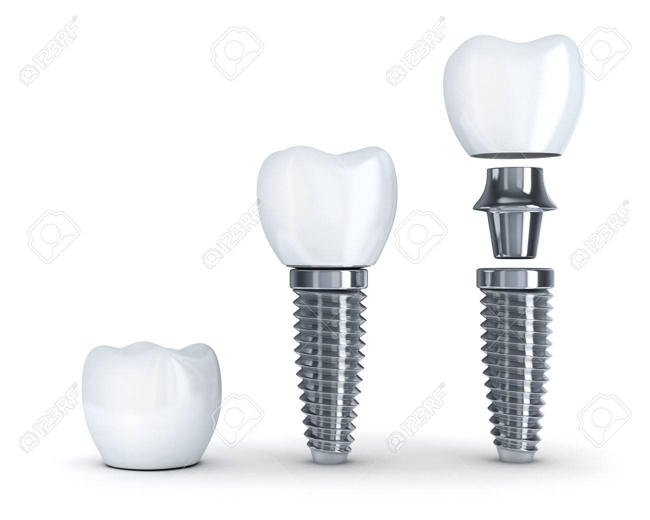 Tooth implant disassembled (done in 3d, isolated) - 47535068