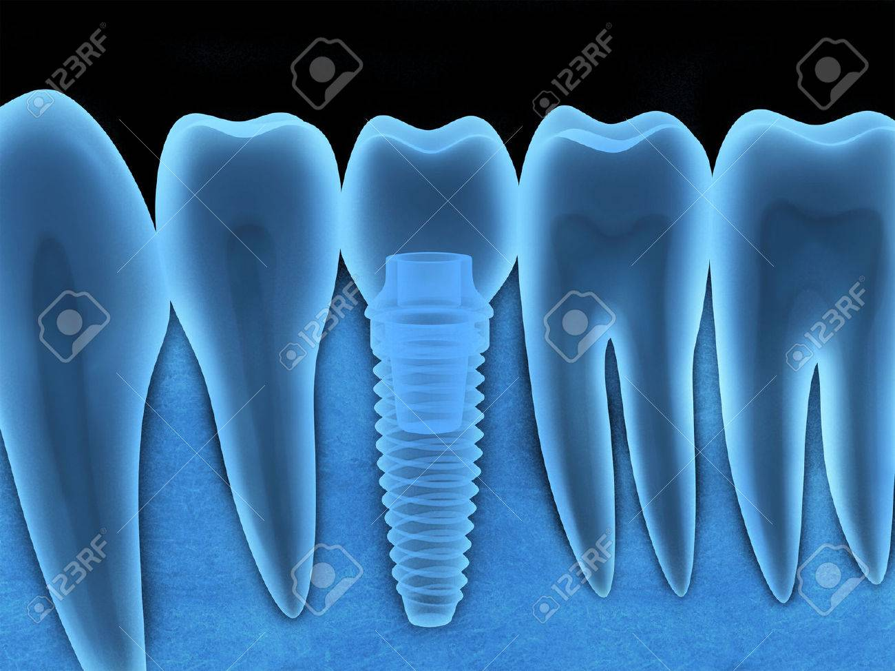 Tooth human implant x-ray (done in 3d, graphics) - 56240942