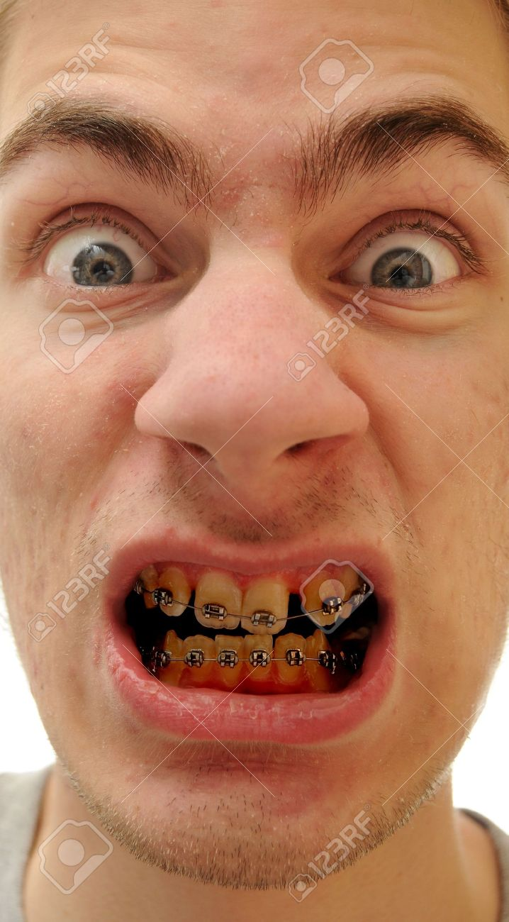 Young white causcasian man shows off his new braces on his poorly cared for yellow teeth. Stock Photo - 6429379