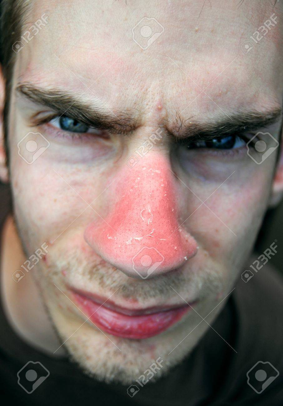 This unfortunate suffering young male has gotten a bad red sunburn on his nose and the red skin is now peeling. Stock Photo - 8928397
