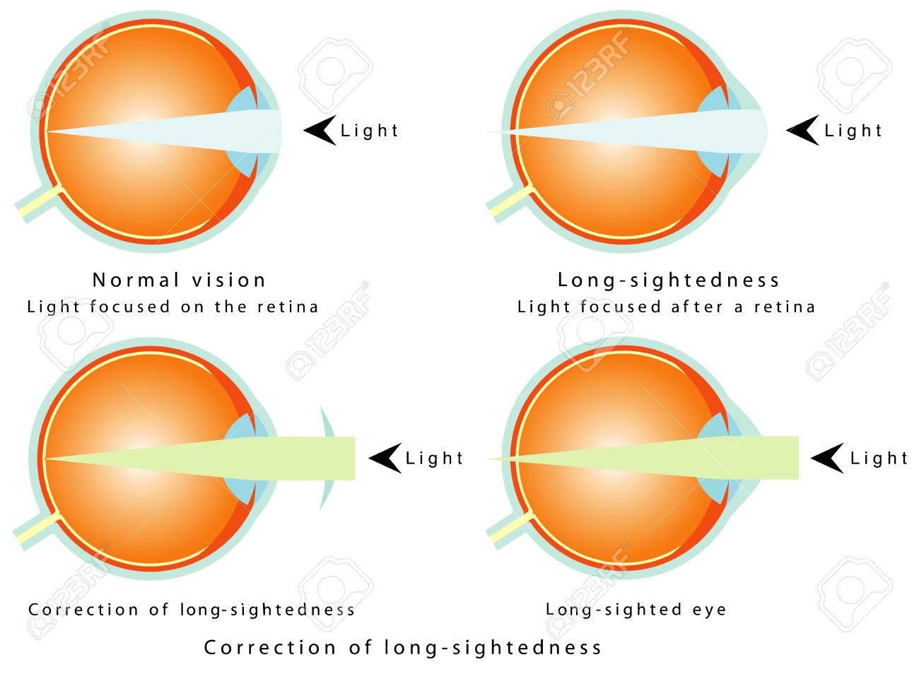 4f6d7f41ce9d Hyperopia Normal Vision