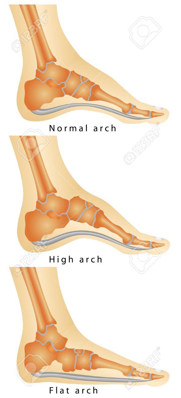 Arch Of Foot Set Of Flat Foot High Arch Rheumatoid Arthritis
