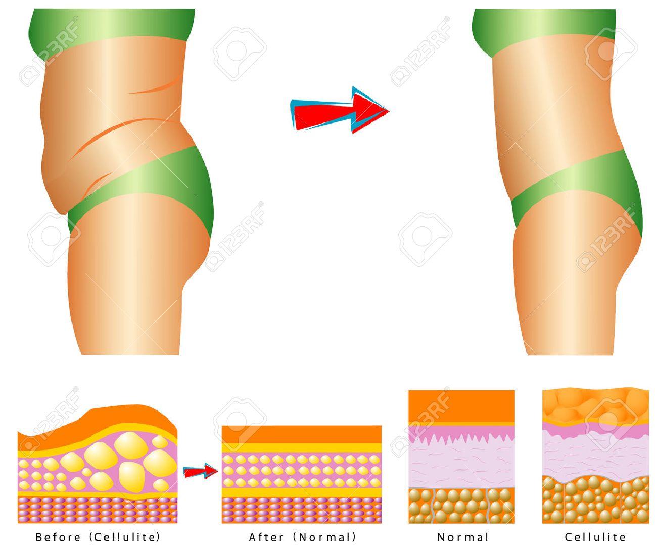 Fett Am Bauch Cellulite - Frau S Körper Vor Und Nach Gegen Cellulite ...