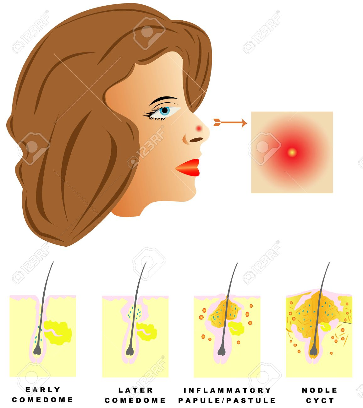 Acne Acne is divided into four types Comedones, Papules, Pustules, Nodules and cysts on white background - 28390279