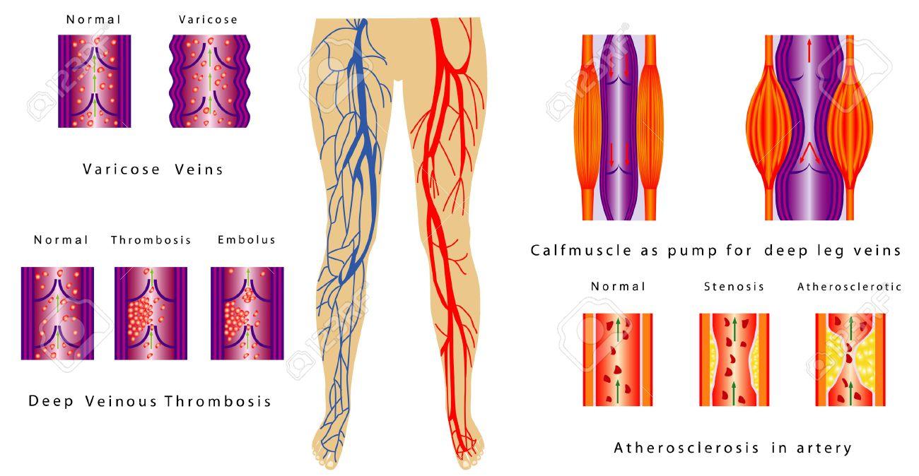 Piernas Sistema Vascular Aterosclerosis En La Arteria Trombosis ...