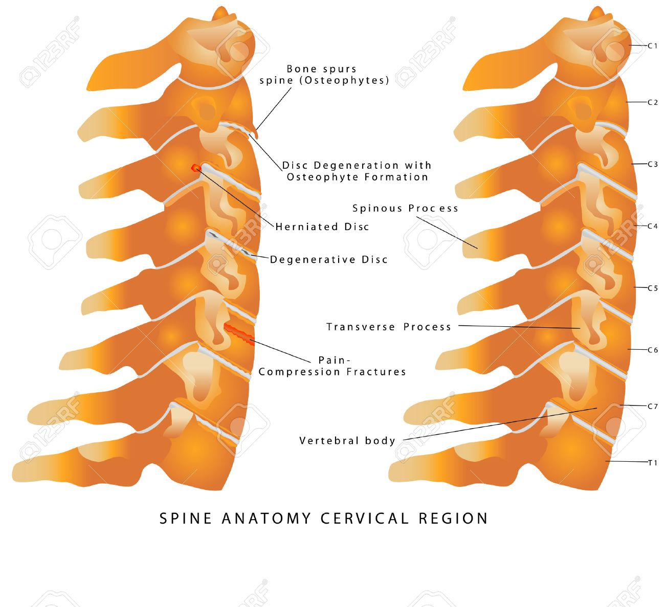 Cervical Spine. Spine Anatomy Cervical Region. Cervical Spine ...