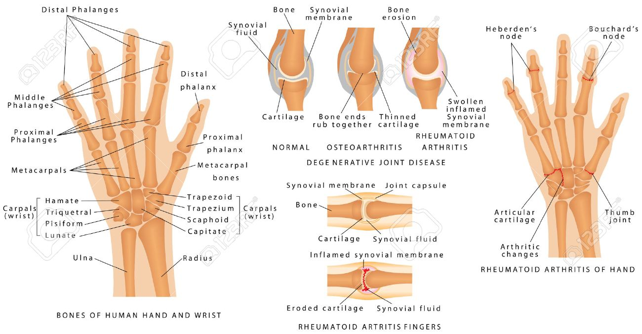 Skeletal System Phalanges. Human Hand Bones Anatomy. Skeleton ...