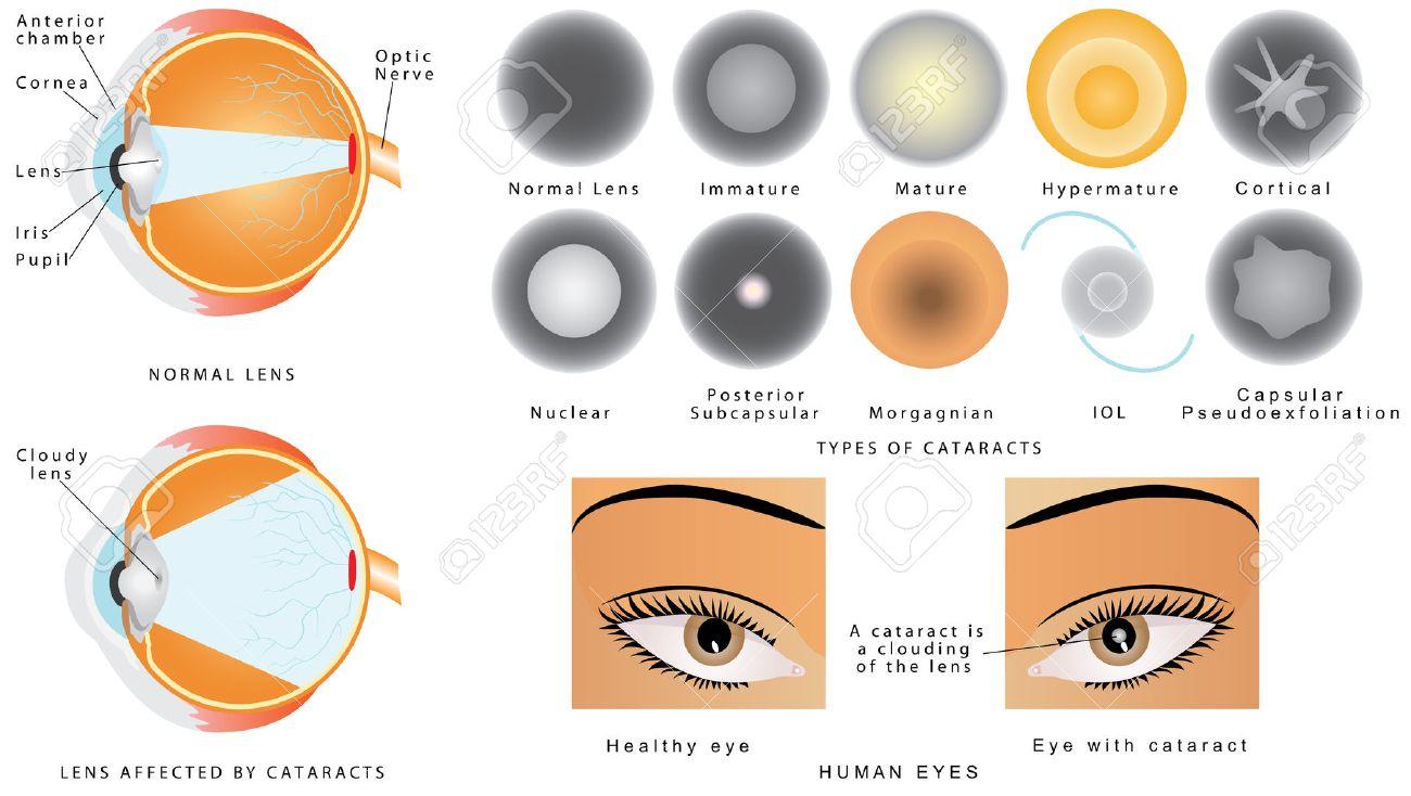 Cataract. Augenerkrankungen Katarakt. Die Struktur Des Auges. Ein ...