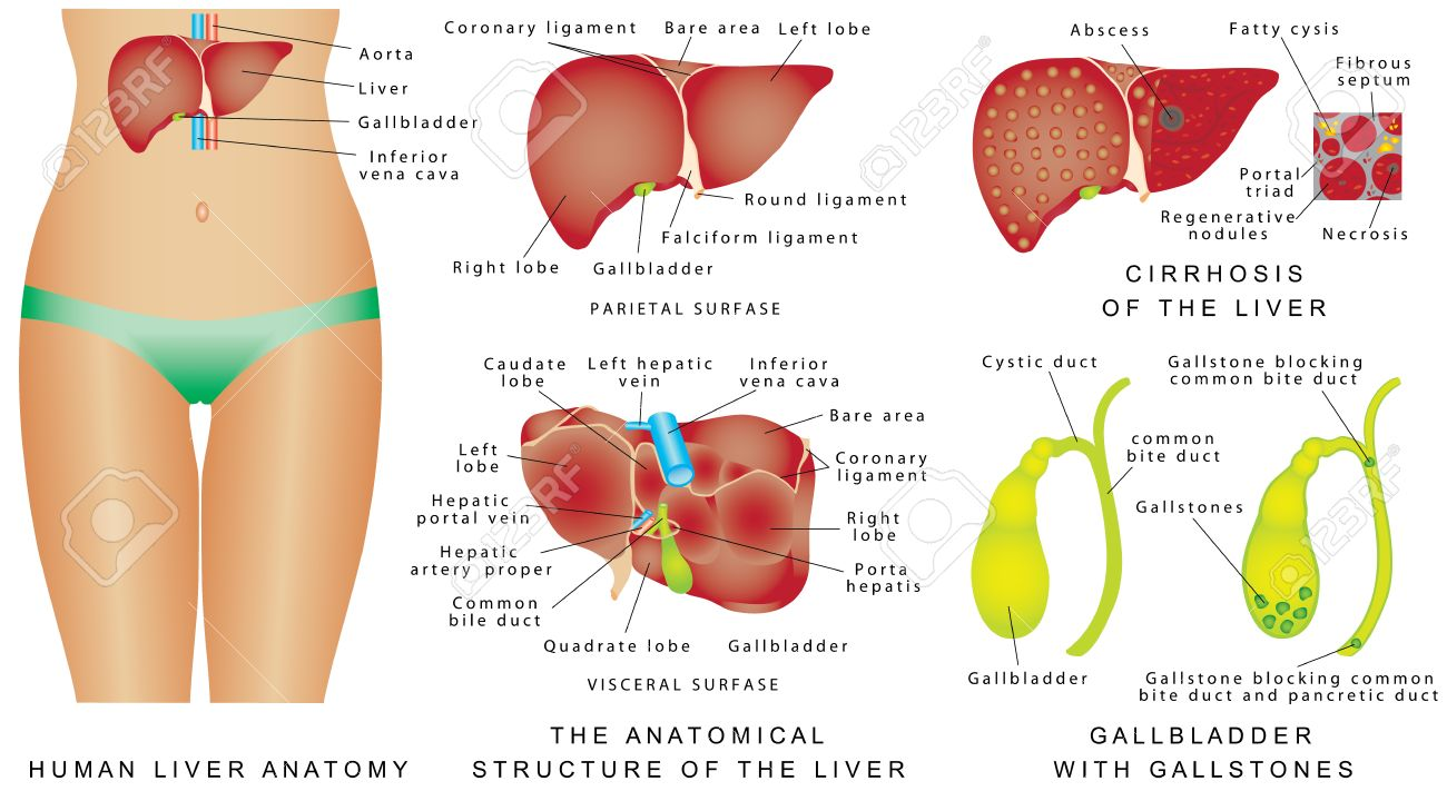 Liver And Gallbladder. Cirrhosis. Major Anatomical Landmarks ...