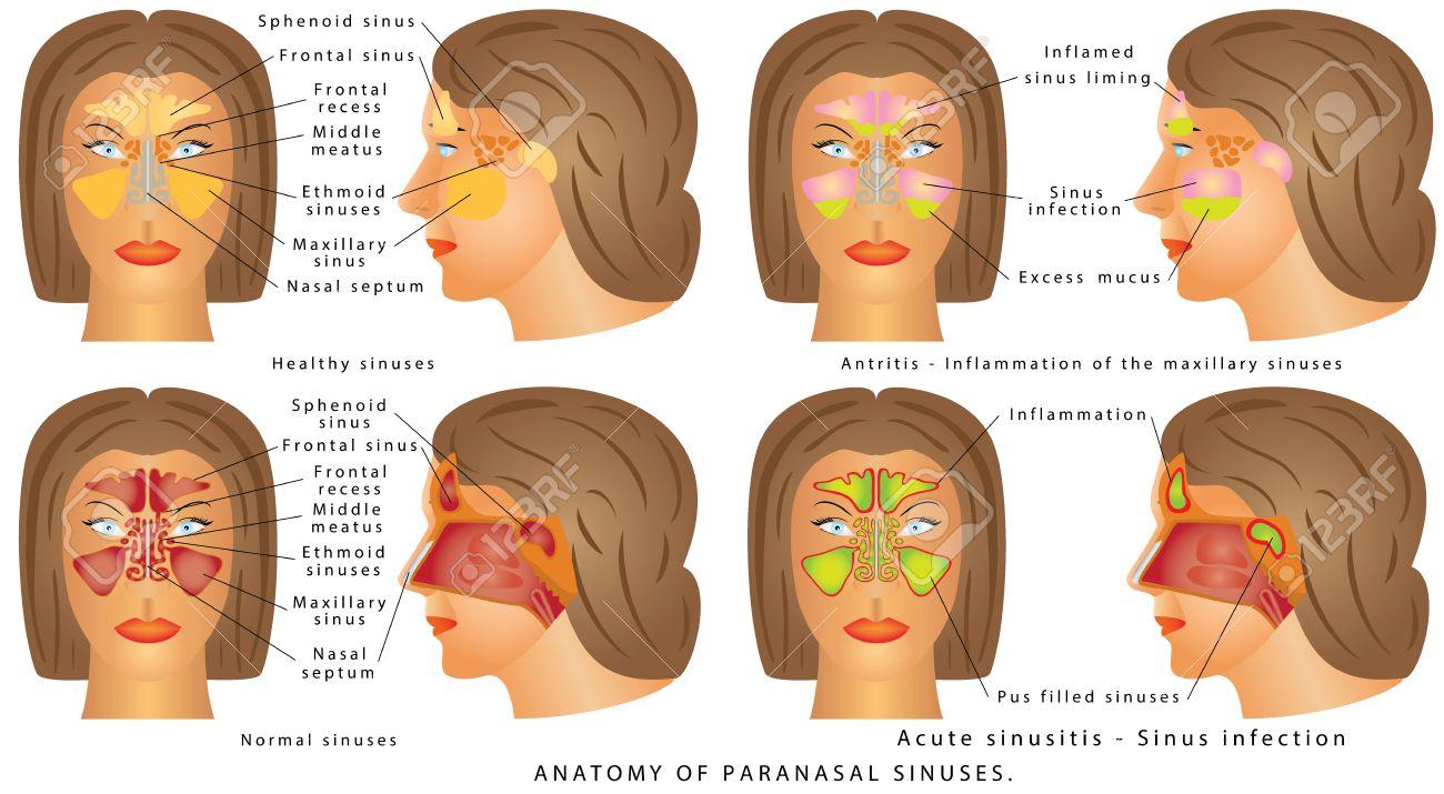 Menschliche Anatomie - Sinusdiagramm. Anatomie Der Nase. Nasenhöhle ...