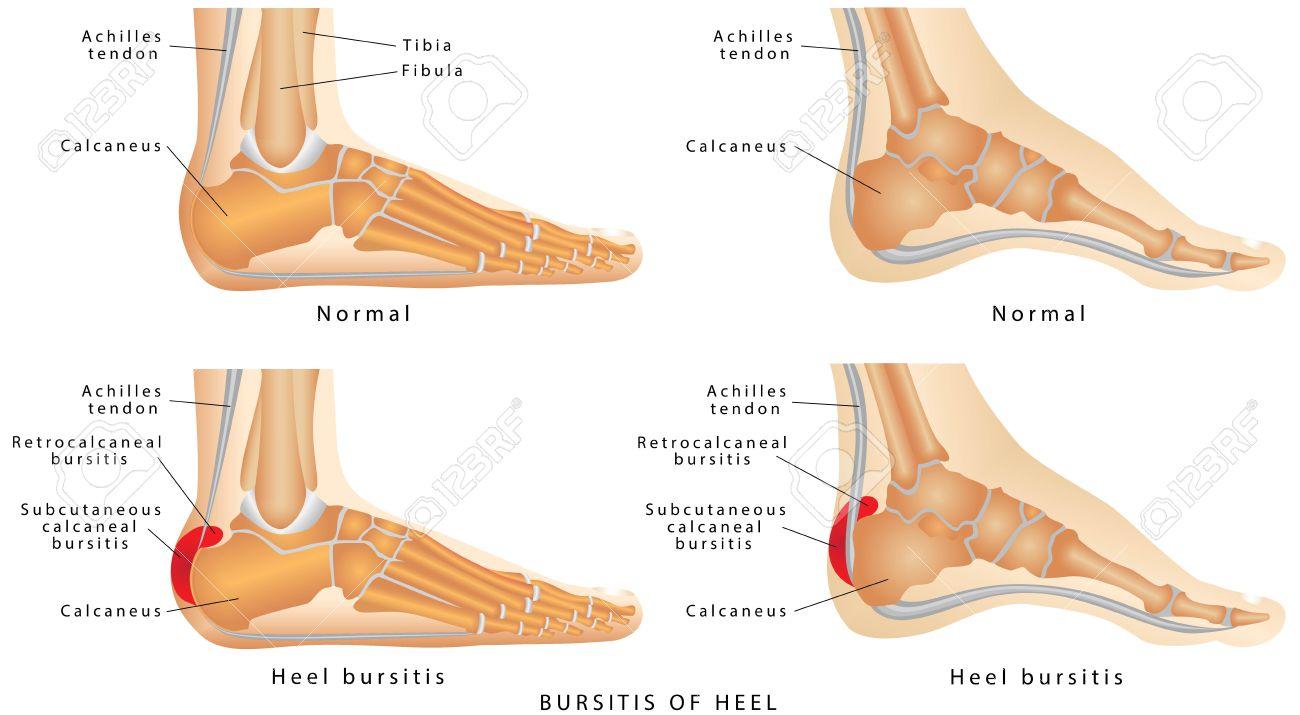 Heel Bursitis. Foot With Normal Heel And The Foot With Haglund\'s ...