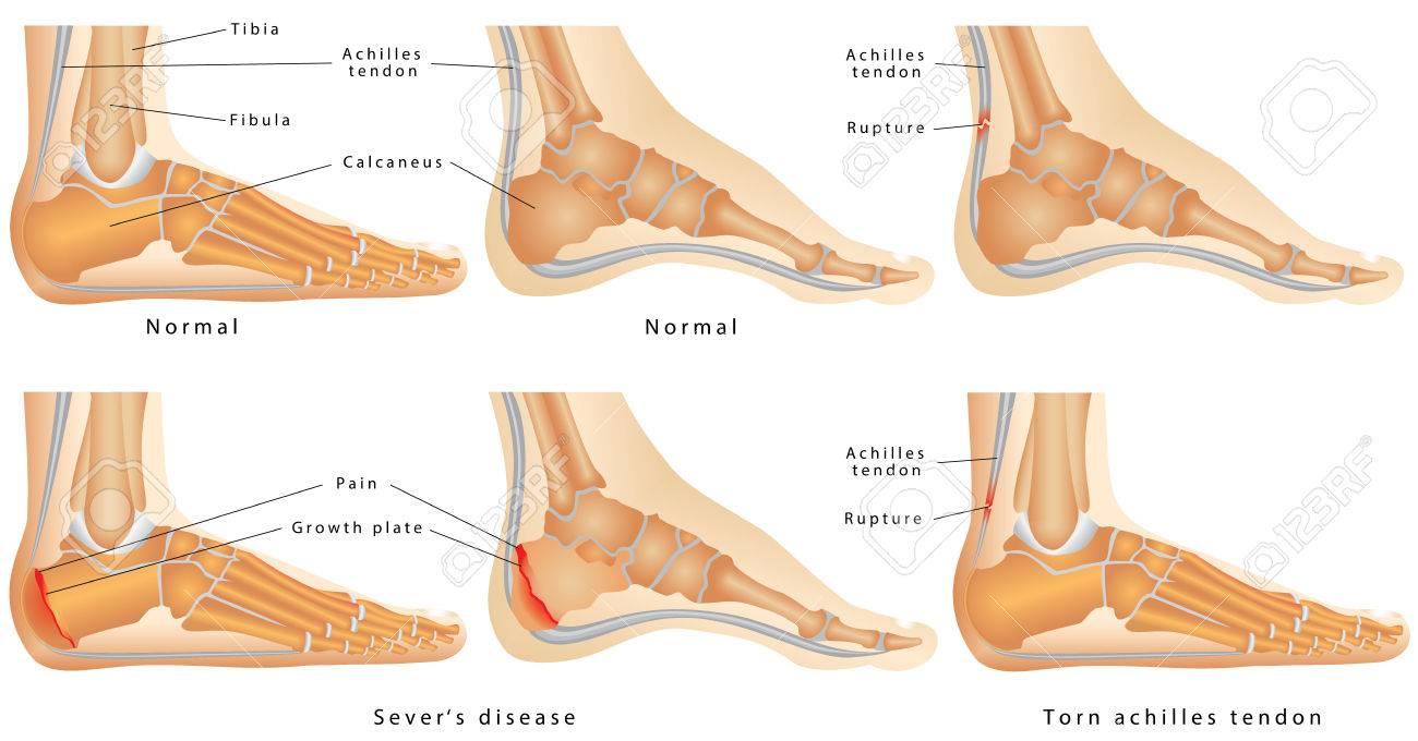 enfermedades de tobillo y pie