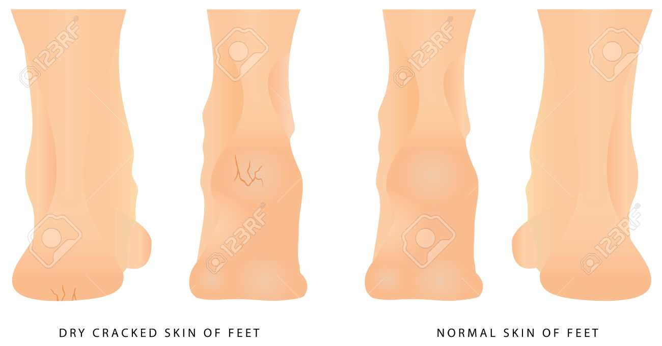 Cracks On Heels Female Legs With Cracks Concept Of Foot Fungus Royalty Free Cliparts Vectors And Stock Illustration Image 84510259