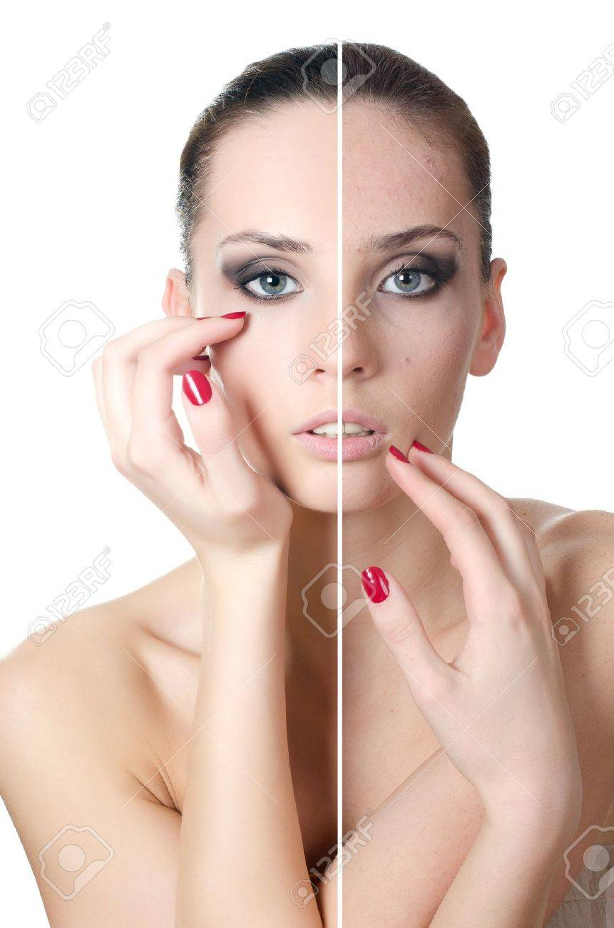 The beautiful girl with problems on face Stock Photo - 13905712