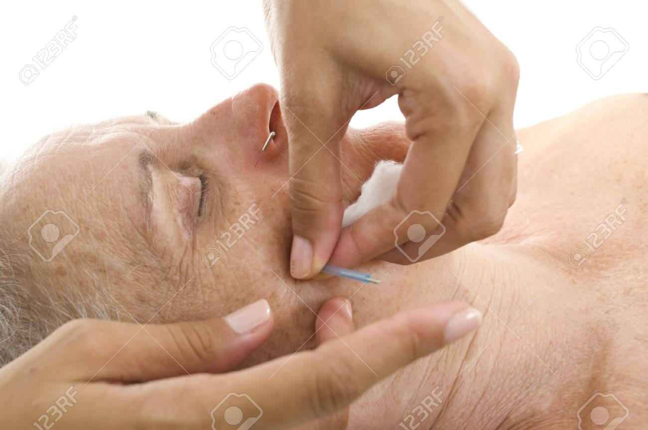 Acupuncture - Application of needles in senior at the spa . Stock Photo - 7075859