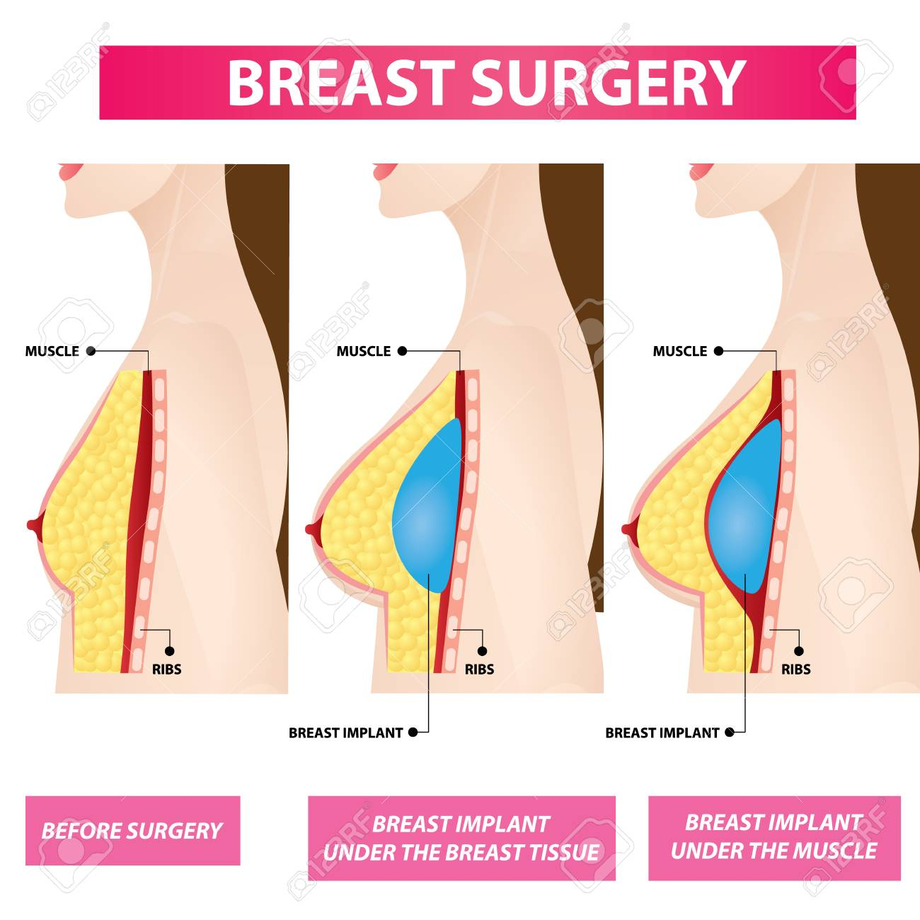 Breast Implants Before After Pictures - RealSelf