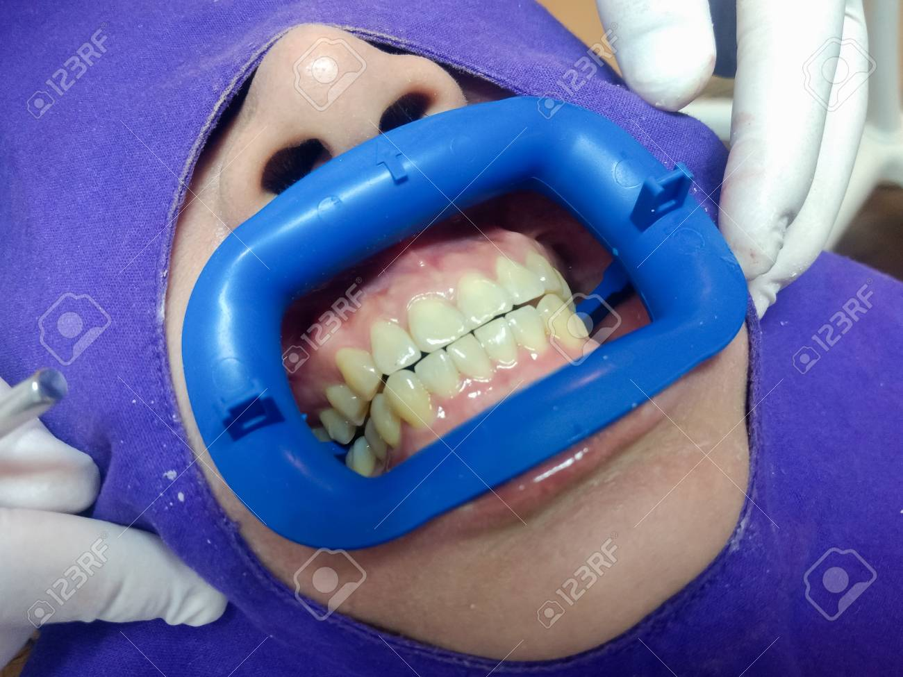 In-Office Professional Teeth Whitening procedure of dentist put