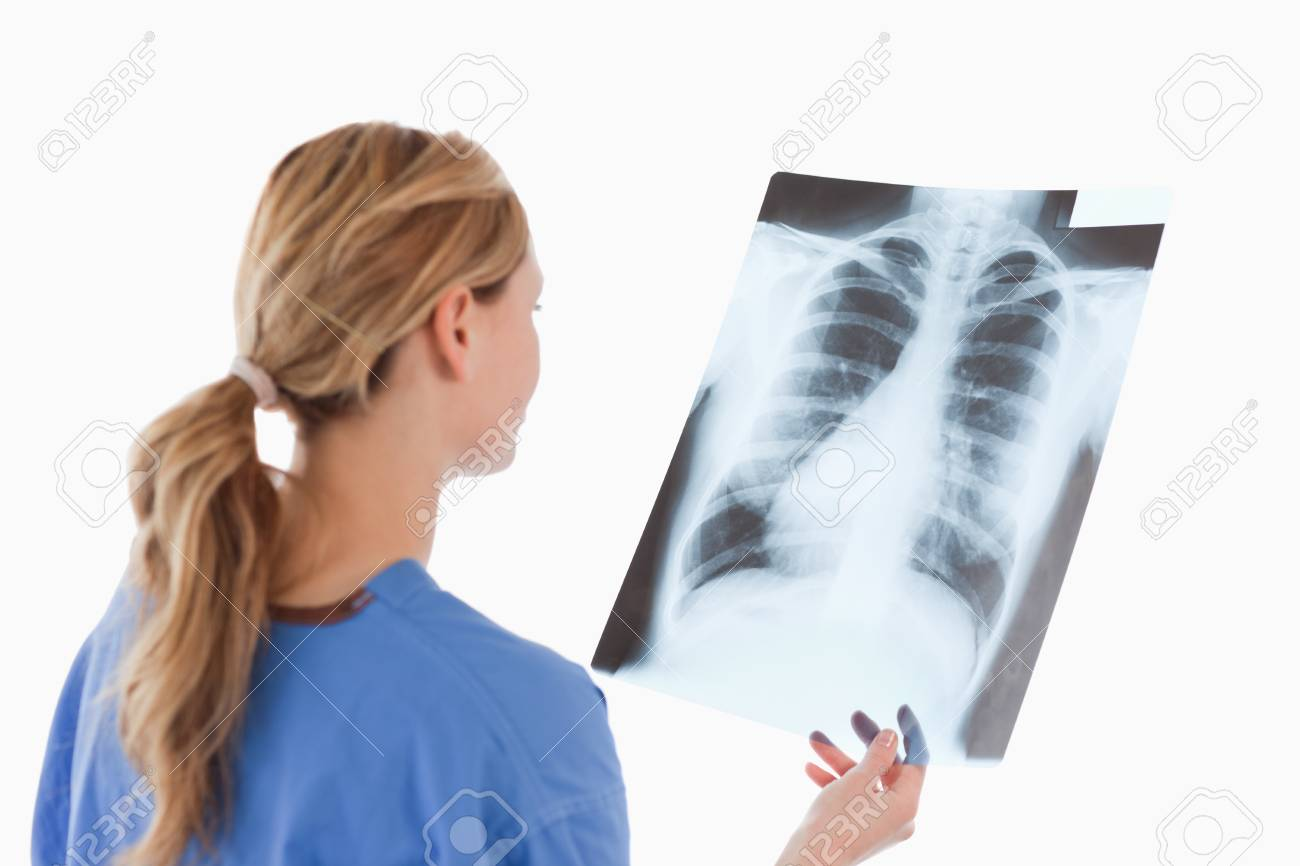 Cute blond-haired doctor looking at an X-ray on a white background Stock Photo - 10195627