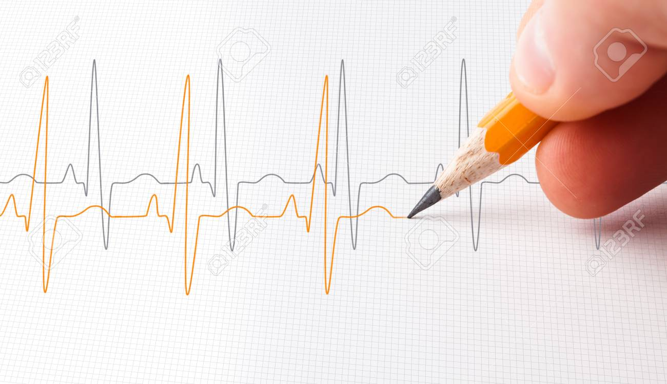 Two Lines Of Heart Beats Drawn With A Pencil Stock Photo Picture
