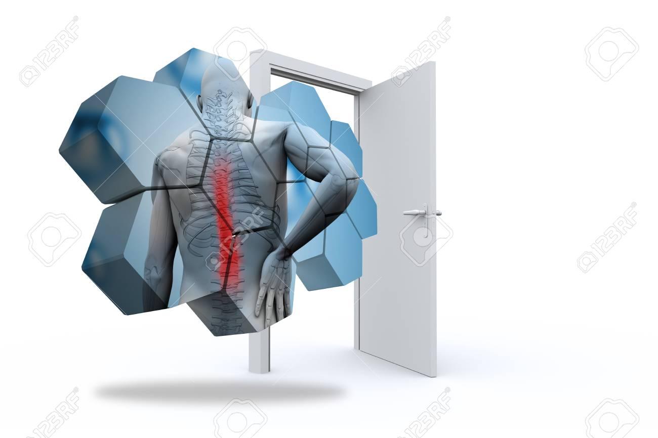 Imagen Compuesta Del Diagrama De Lesión En La Espalda En La Pantalla ...