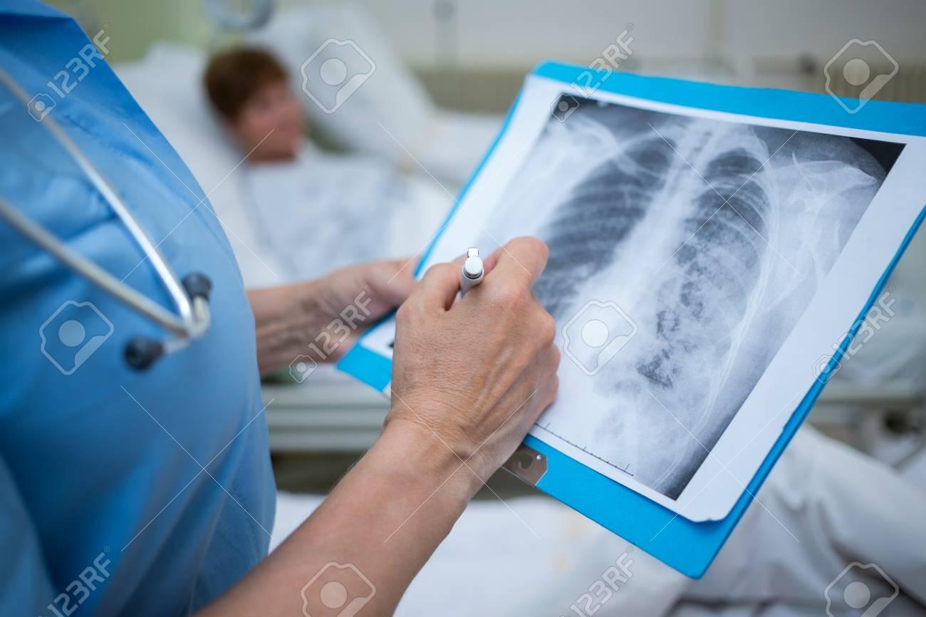 Arzt Untersuchen Röntgen Von Patienten Im Krankenhaus Zimmer ...