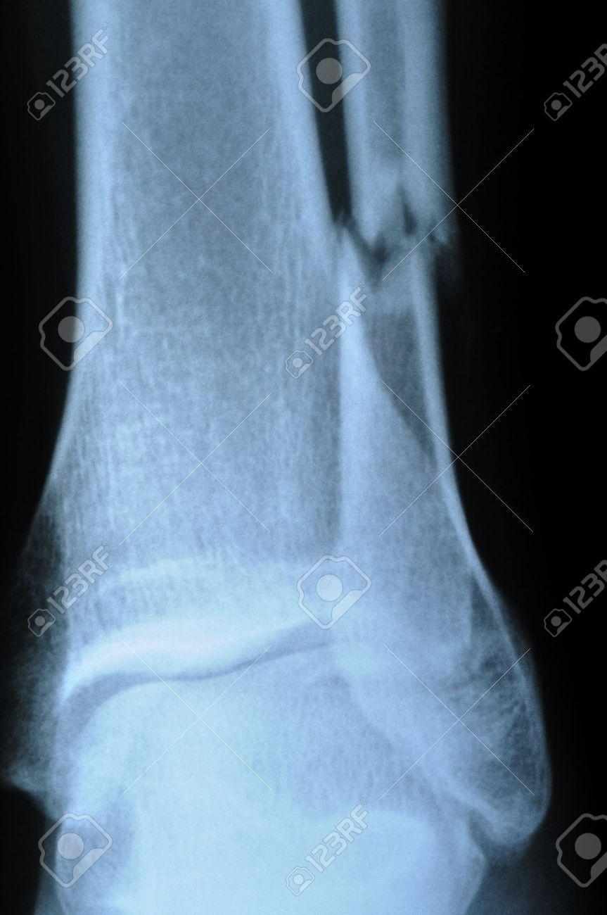 x-ray of human leg (broken leg) - 9398387