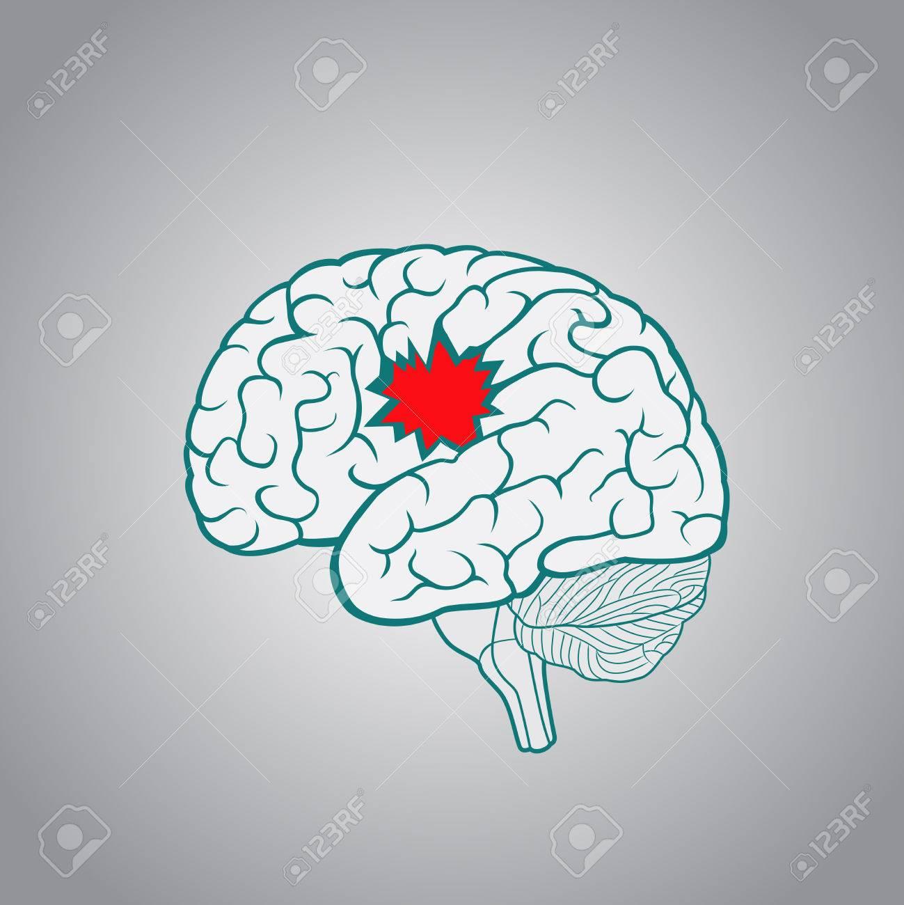 Ein Gehirn Mit Einem Loch, Das Konzept Der Zerstörung Des Gehirns ...