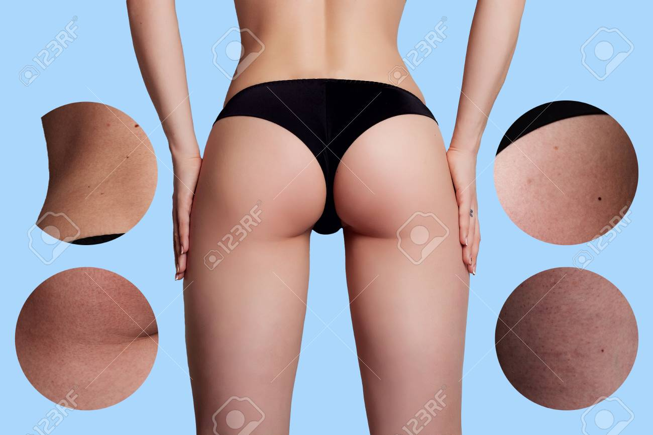 Concept Skincare The Skin On The Thighs Of A Young Woman Before Stock Photo Picture And Royalty Free Image Image 55697621