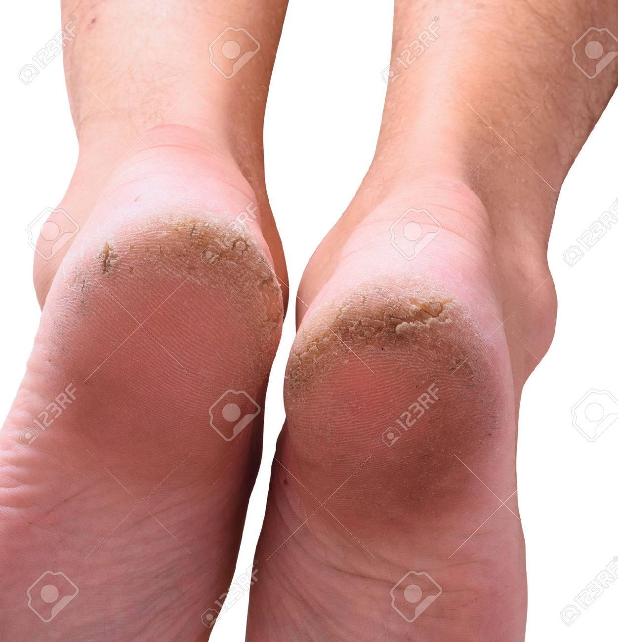peau seche talon