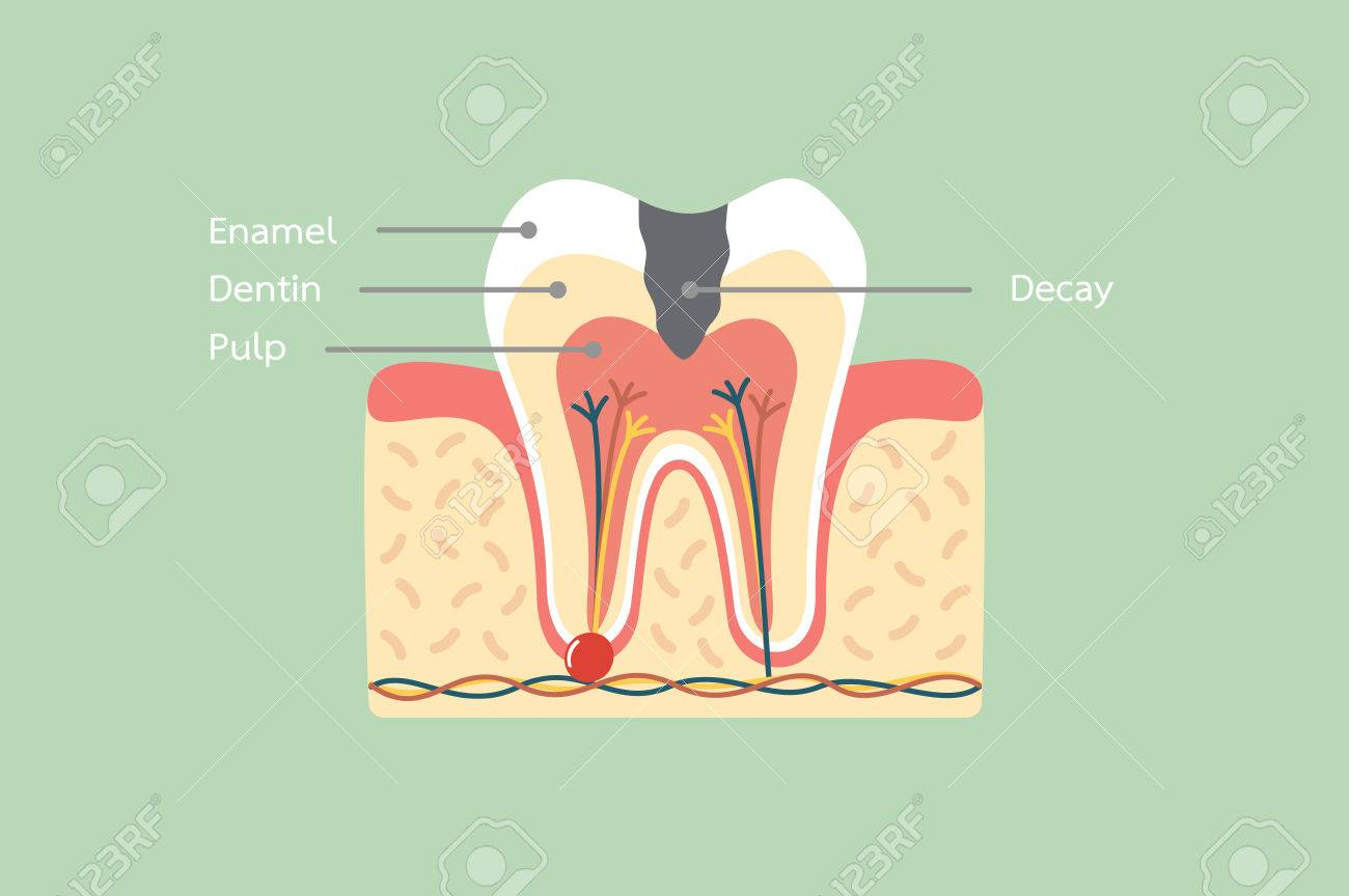 Dental Cartoon Vector Flat Style For Design, Decay Tooth Anatomy ...